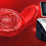 Give Your Blood Gas Testing a Plus